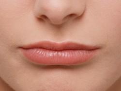 Lūpų putlinimas kaina